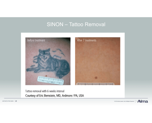 tattoos entfernen mit rubinlaser hautnah